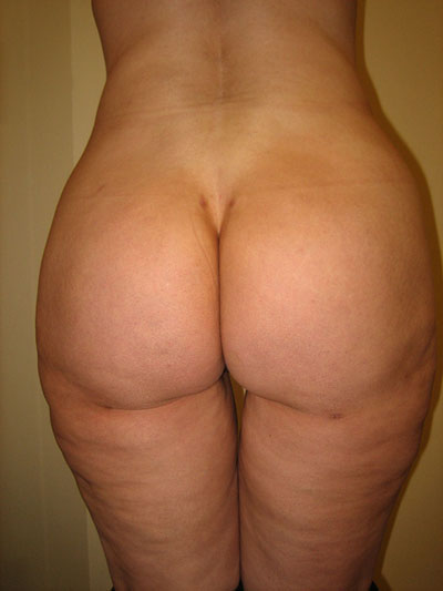 Buttock Augmentation Photos